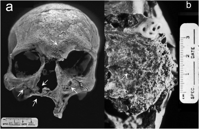 Skeletal remains from Balithal, Rajasthan